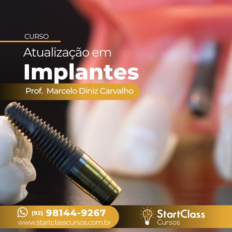 atualizacao-implantes
